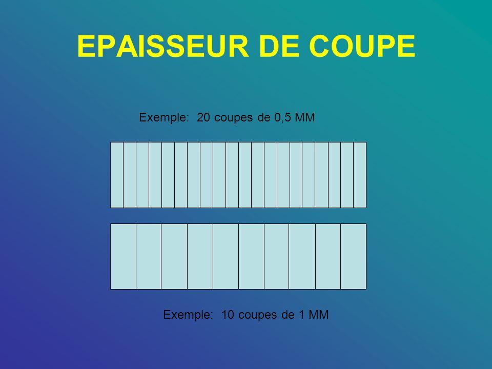 EPAISSEUR DE COUPE Exemple: 20 coupes de 0,5 MM