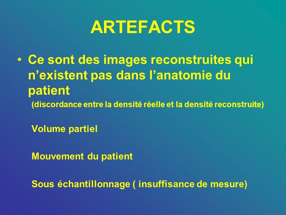 ARTEFACTS Ce sont des images reconstruites qui n'existent pas dans l'anatomie du patient.