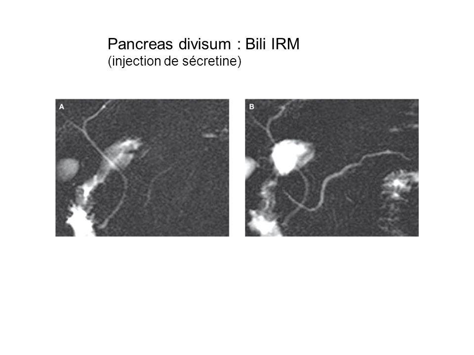 Pancreas divisum : Bili IRM (injection de sécretine)