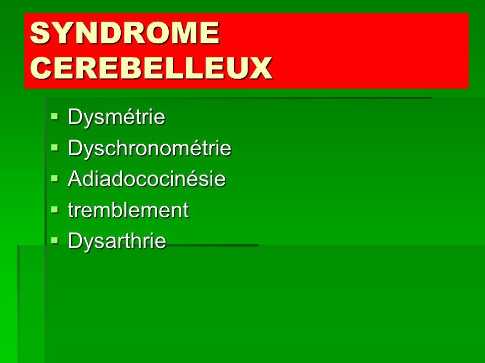 SYNDROME CEREBELLEUX Dysmétrie Dyschronométrie Adiadococinésie