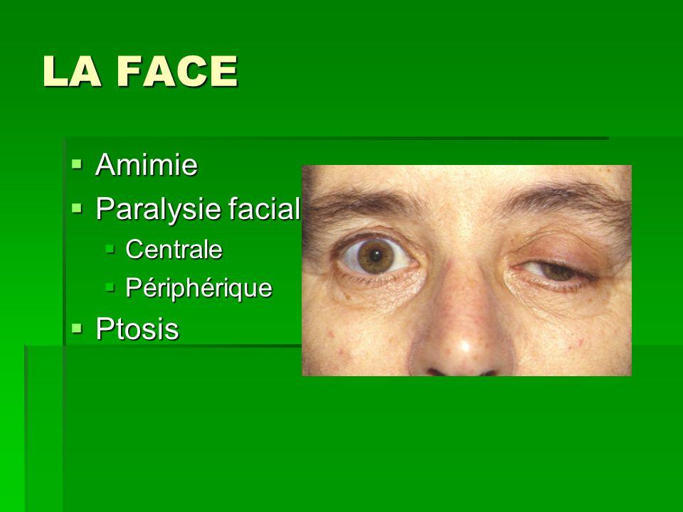 LA FACE Amimie Paralysie faciale Centrale Périphérique Ptosis