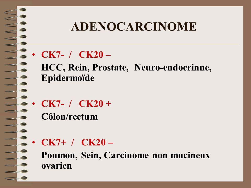 ADENOCARCINOME CK7- / CK20 –