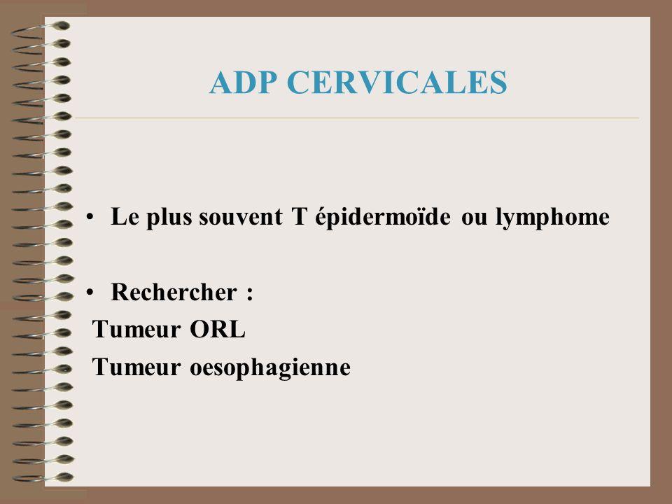 ADP CERVICALES Le plus souvent T épidermoïde ou lymphome Rechercher :