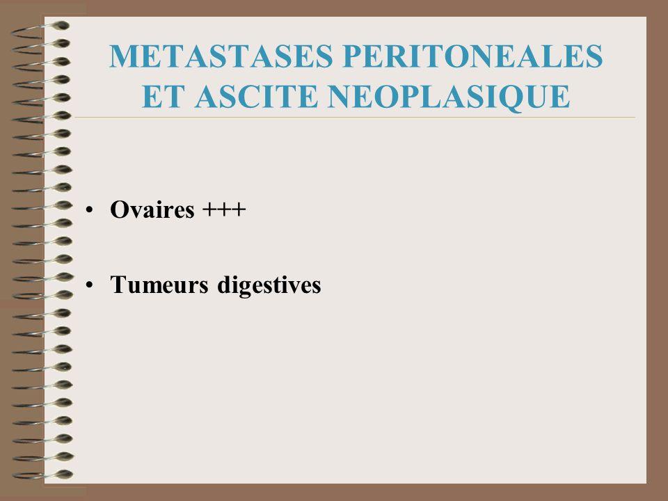 METASTASES PERITONEALES ET ASCITE NEOPLASIQUE