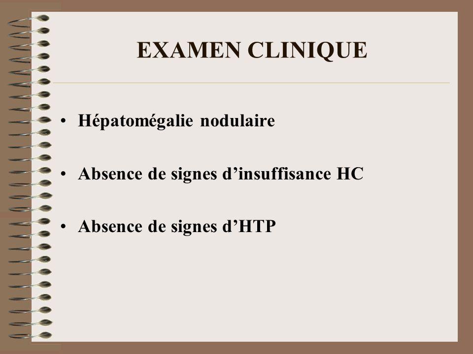 EXAMEN CLINIQUE Hépatomégalie nodulaire