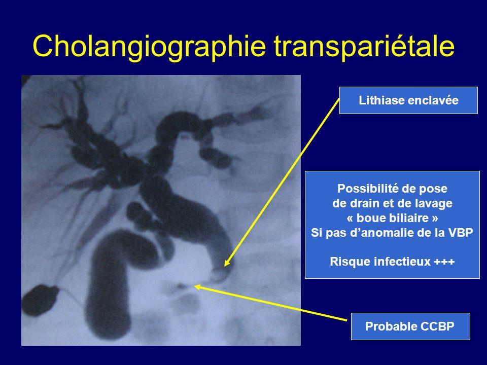 Cholangiographie transpariétale