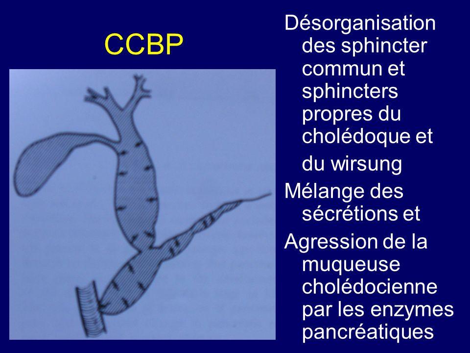 Désorganisation des sphincter commun et sphincters propres du cholédoque et