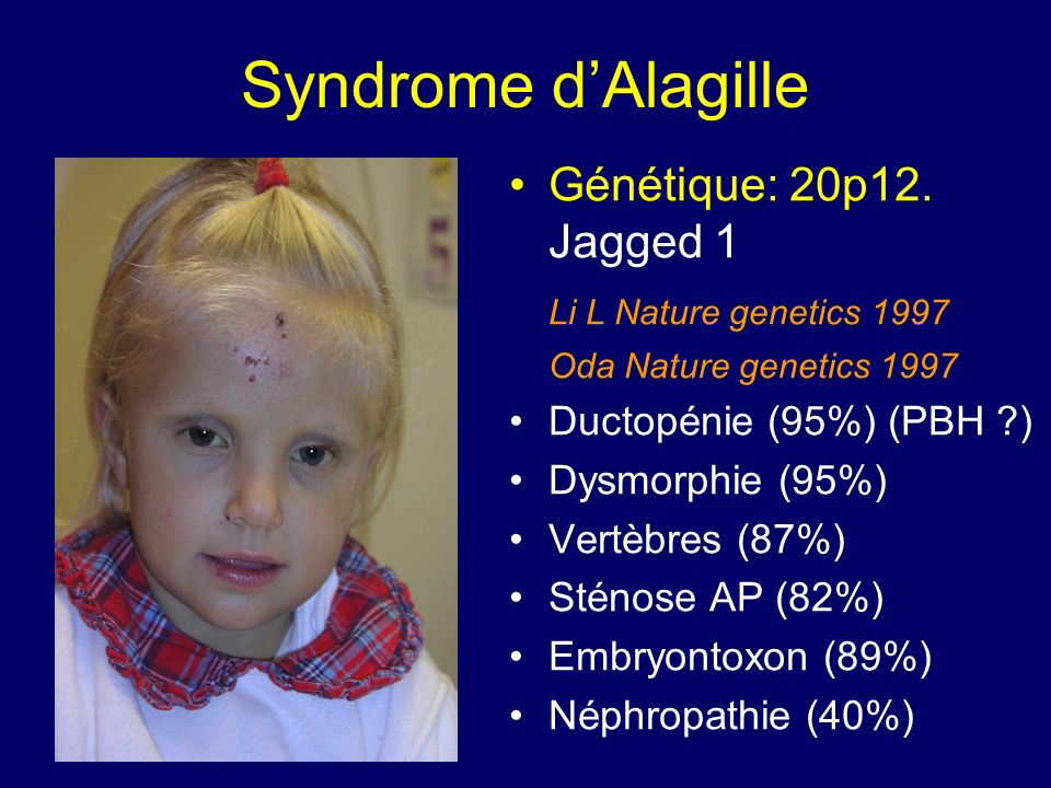 Syndrome d'Alagille Génétique: 20p12. Jagged 1