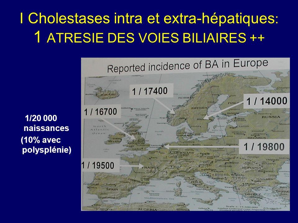 I Cholestases intra et extra-hépatiques: 1 ATRESIE DES VOIES BILIAIRES ++