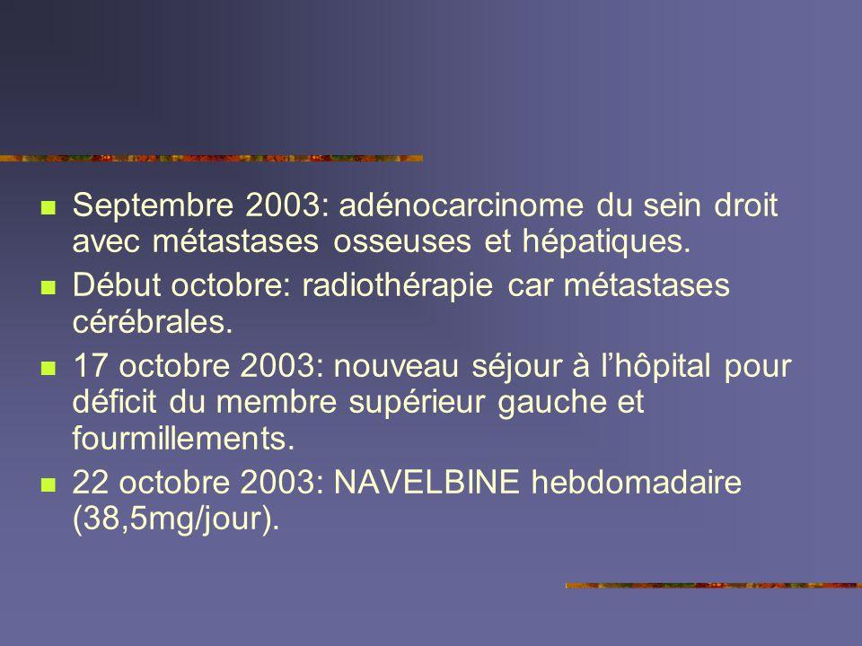 Septembre 2003: adénocarcinome du sein droit avec métastases osseuses et hépatiques.