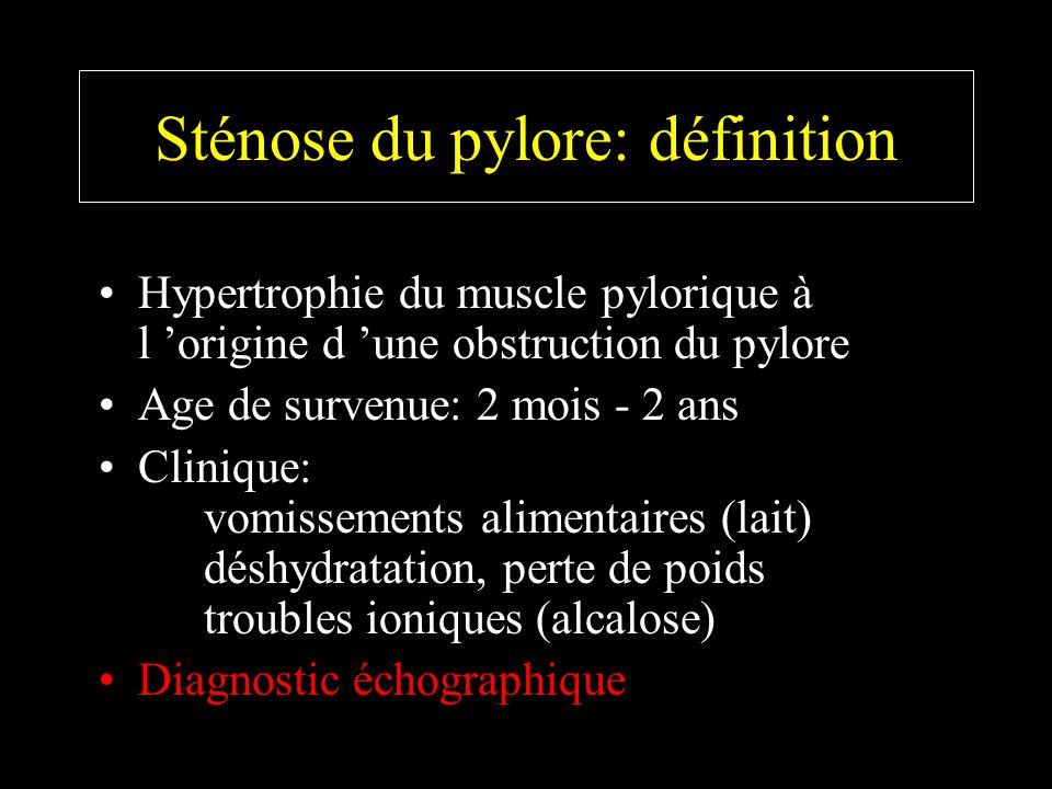 Sténose du pylore: définition
