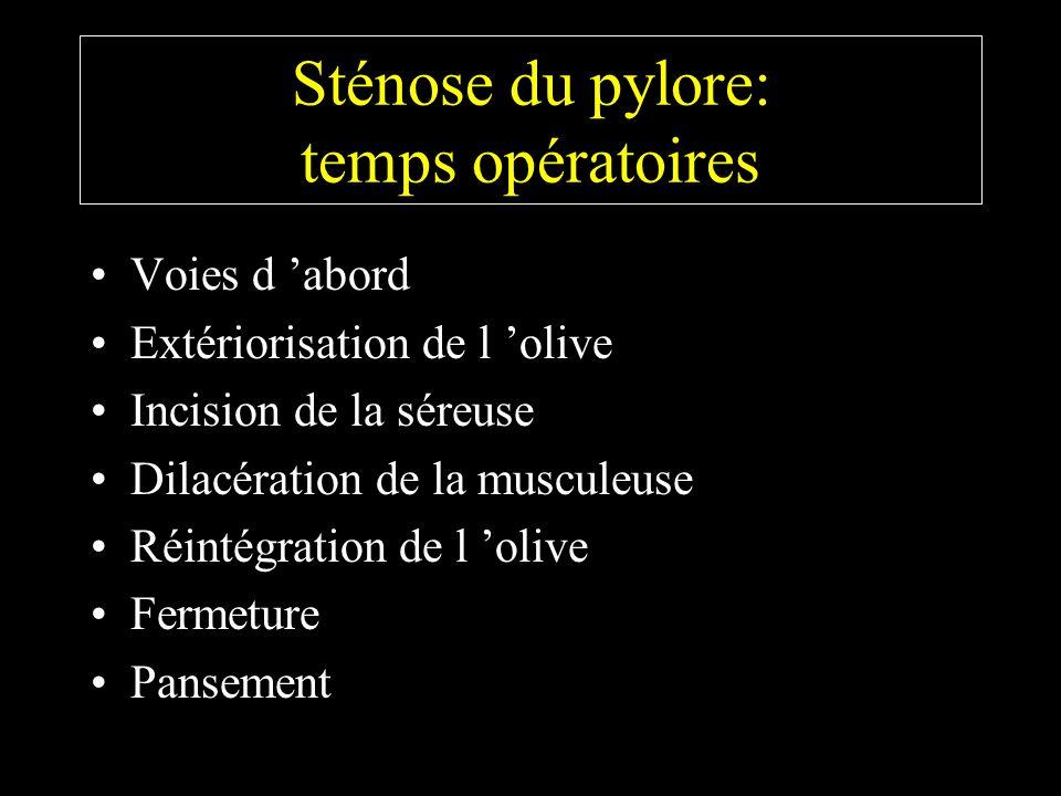 Sténose du pylore: temps opératoires