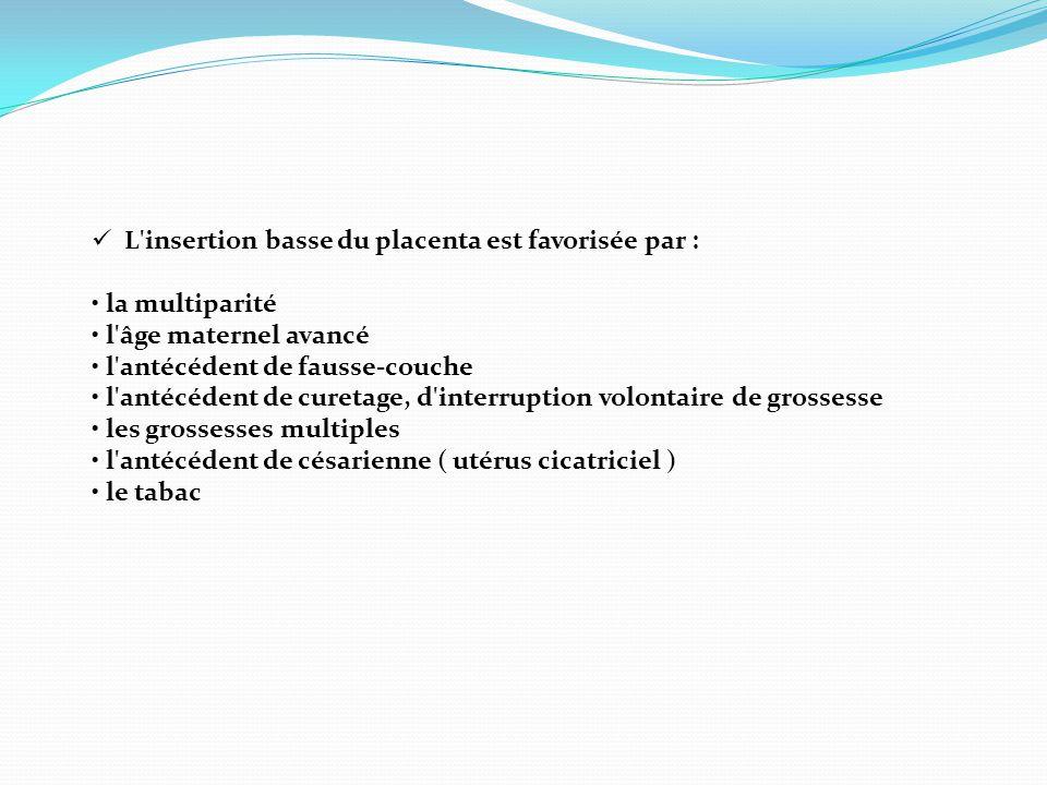 L insertion basse du placenta est favorisée par :