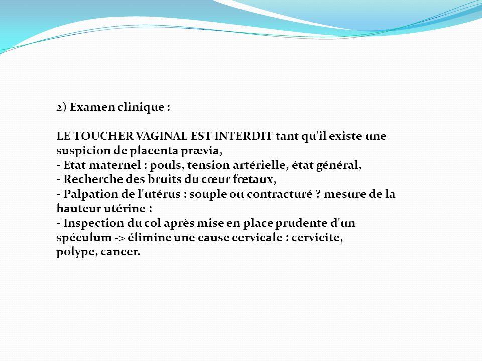 2) Examen clinique : LE TOUCHER VAGINAL EST INTERDIT tant qu il existe une suspicion de placenta prævia,