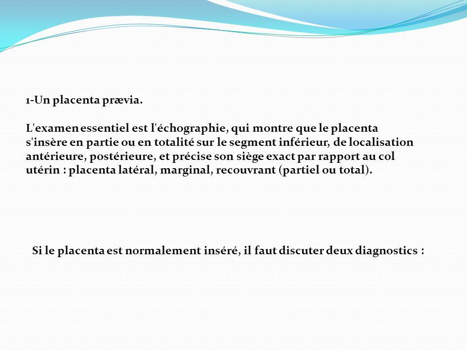 1-Un placenta prævia.