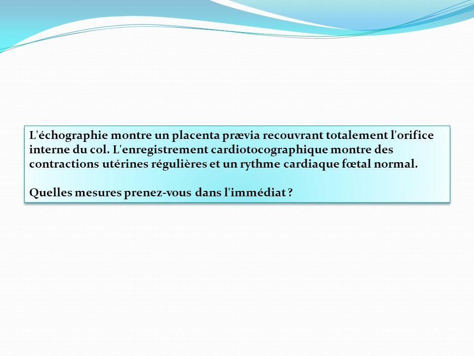 L échographie montre un placenta prævia recouvrant totalement l orifice interne du col. L enregistrement cardiotocographique montre des contractions utérines régulières et un rythme cardiaque fœtal normal.