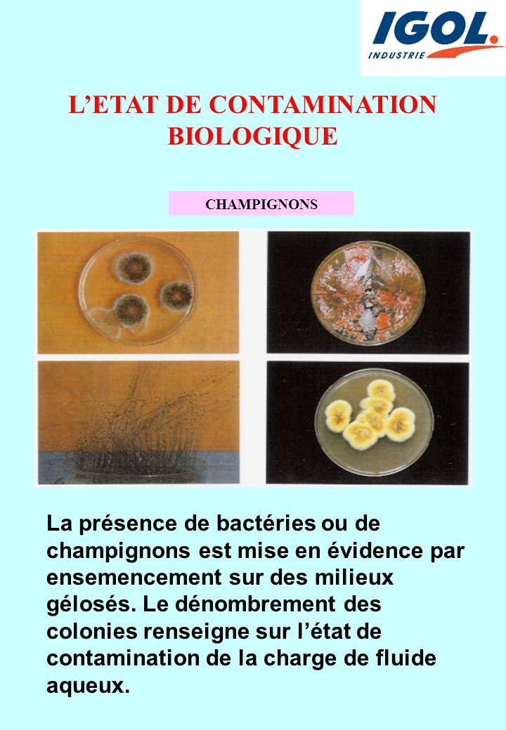 L'ETAT DE CONTAMINATION BIOLOGIQUE