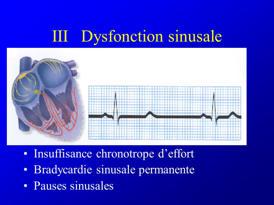 III Dysfonction sinusale