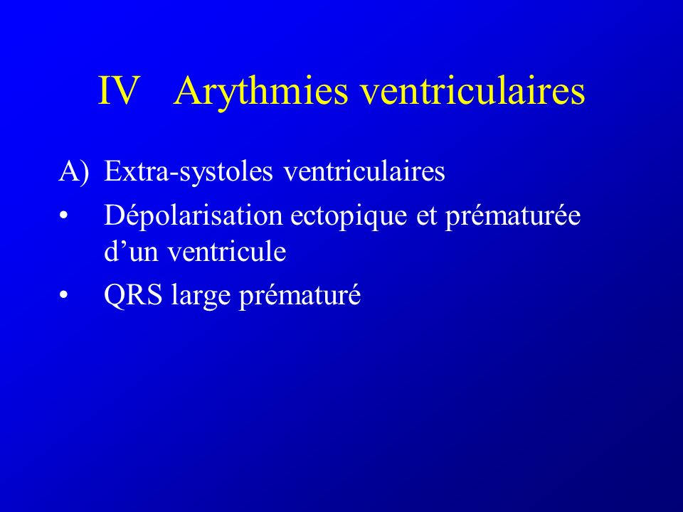 IV Arythmies ventriculaires