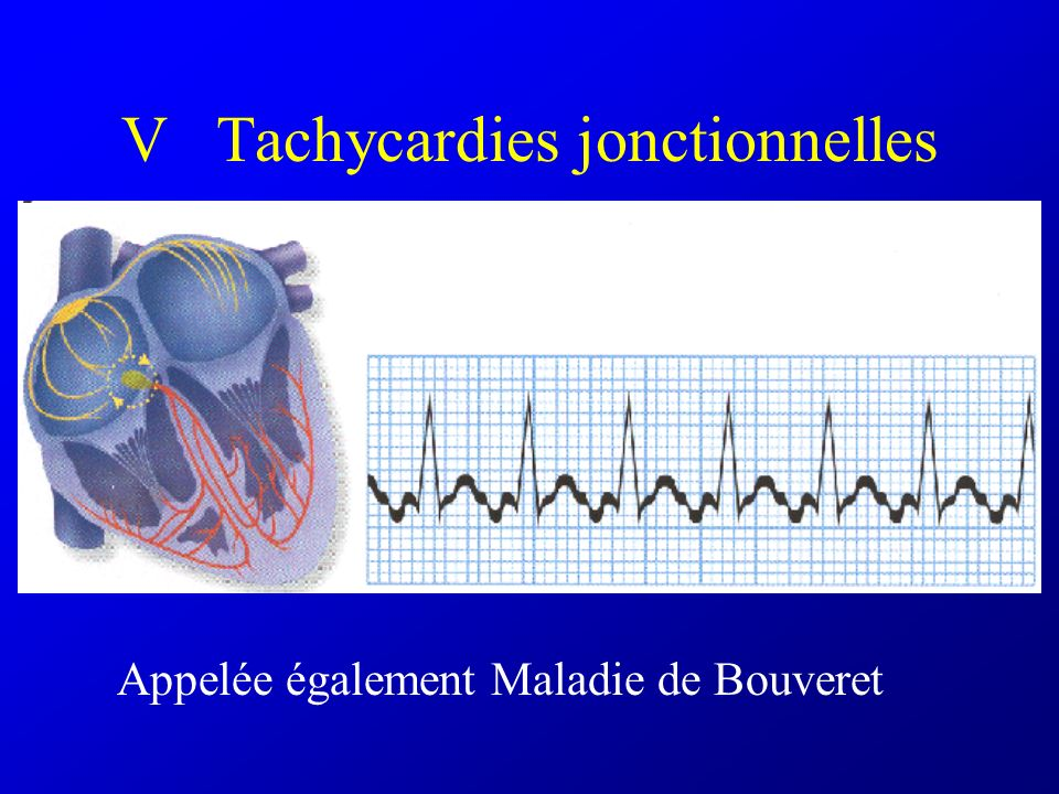 V Tachycardies jonctionnelles