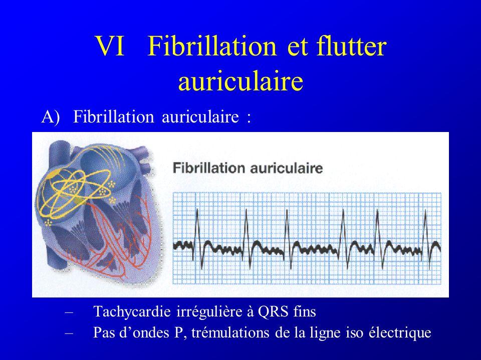 VI Fibrillation et flutter auriculaire
