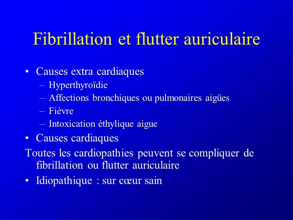 Fibrillation et flutter auriculaire