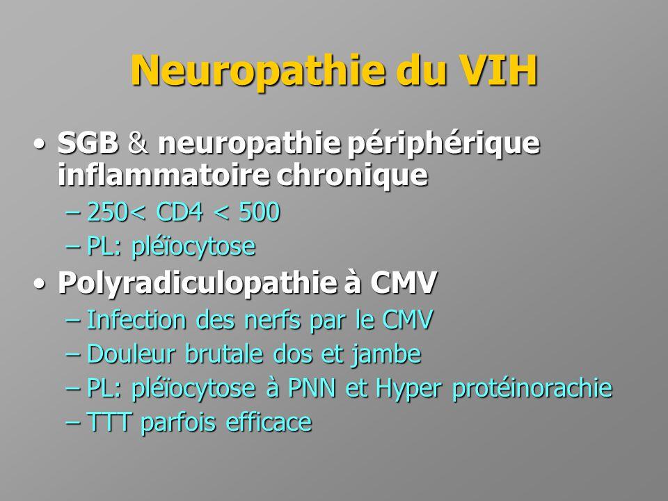 Neuropathie du VIH SGB & neuropathie périphérique inflammatoire chronique. 250< CD4 < 500. PL: pléïocytose.