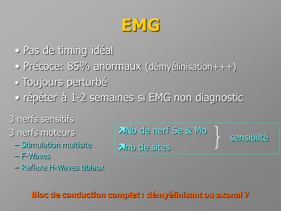 Bloc de conduction complet : démyélinisant ou axonal