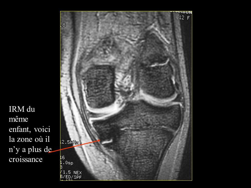 IRM du même enfant, voici la zone où il n'y a plus de croissance