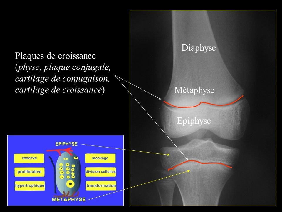 Diaphyse Plaques de croissance. (physe, plaque conjugale, cartilage de conjugaison, cartilage de croissance)