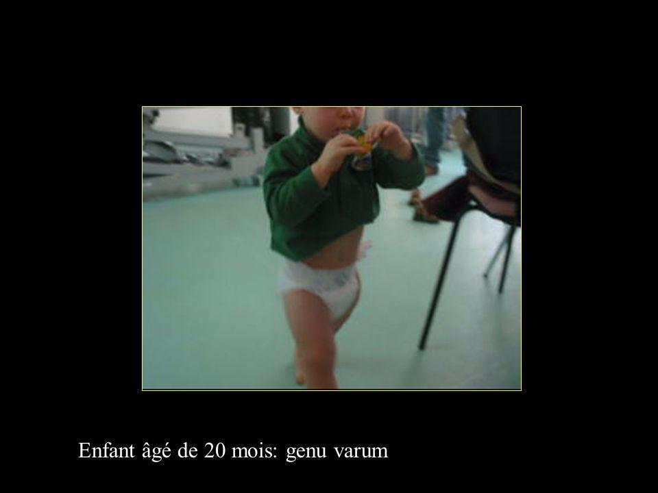 Enfant âgé de 20 mois: genu varum