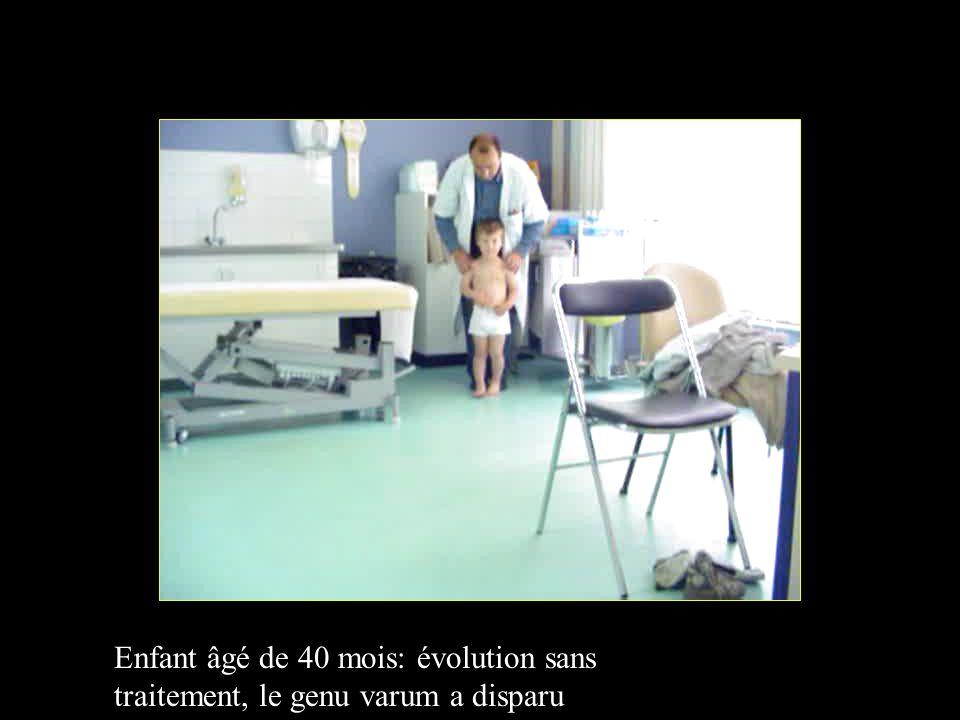Enfant âgé de 40 mois: évolution sans traitement, le genu varum a disparu