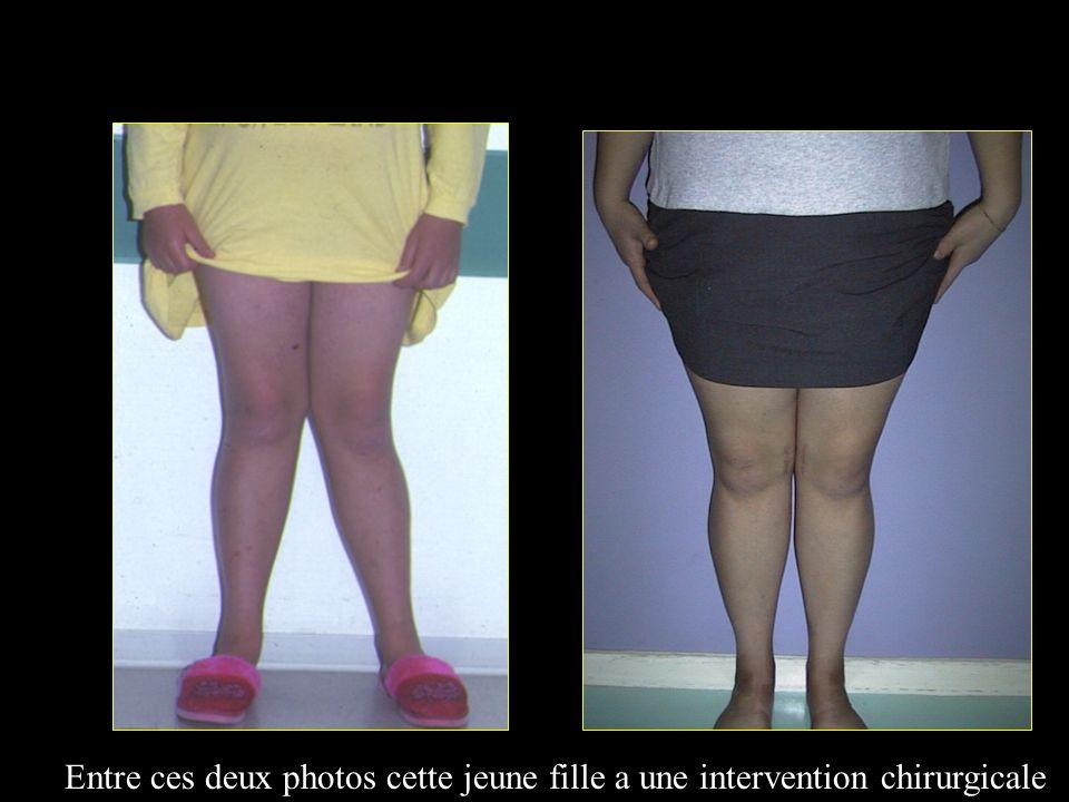 Entre ces deux photos cette jeune fille a une intervention chirurgicale