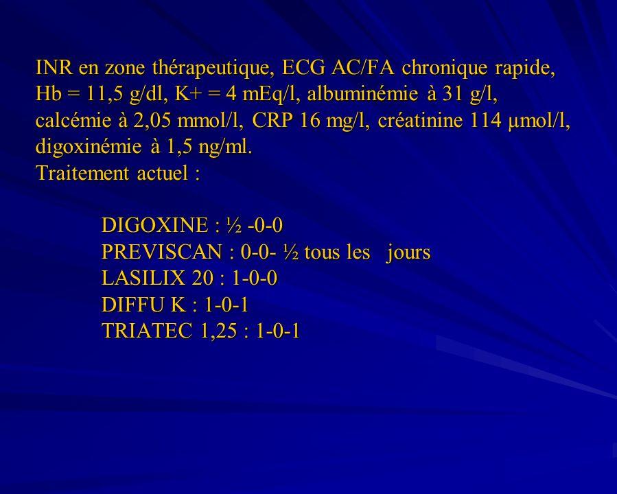 INR en zone thérapeutique, ECG AC/FA chronique rapide, Hb = 11,5 g/dl, K+ = 4 mEq/l, albuminémie à 31 g/l, calcémie à 2,05 mmol/l, CRP 16 mg/l, créatinine 114 µmol/l, digoxinémie à 1,5 ng/ml.