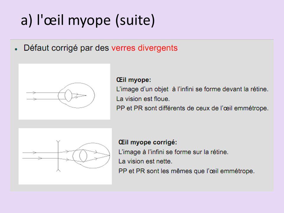 a) l œil myope (suite)