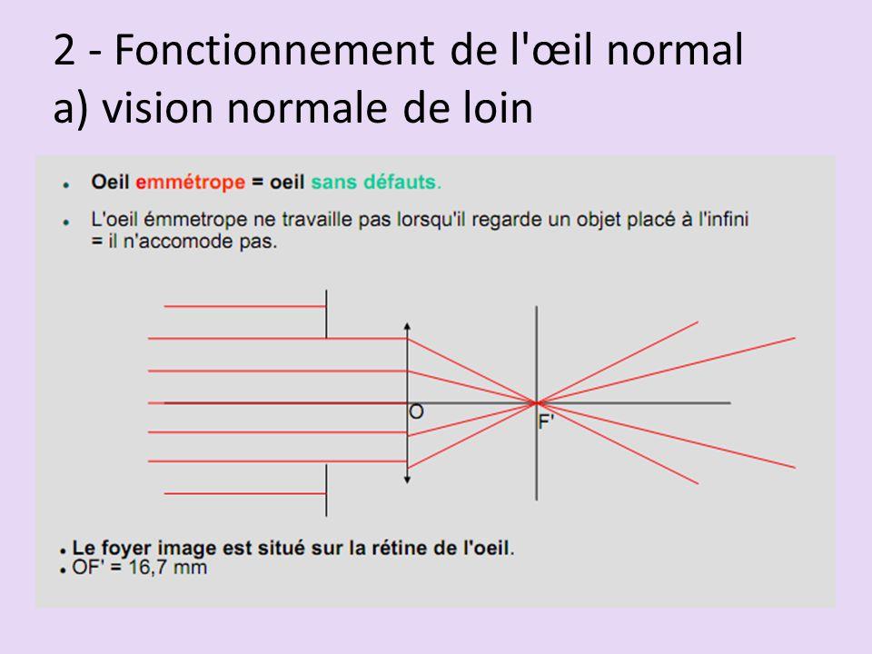 2 - Fonctionnement de l œil normal a) vision normale de loin