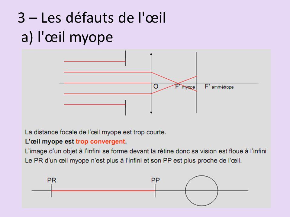 3 – Les défauts de l œil a) l œil myope