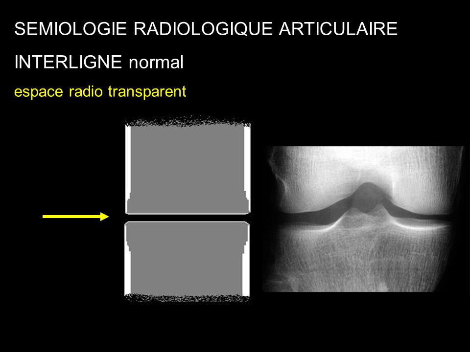 SEMIOLOGIE RADIOLOGIQUE ARTICULAIRE INTERLIGNE normal
