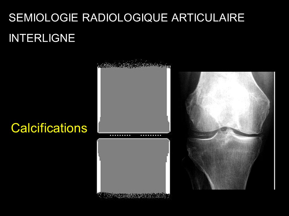 Calcifications SEMIOLOGIE RADIOLOGIQUE ARTICULAIRE INTERLIGNE