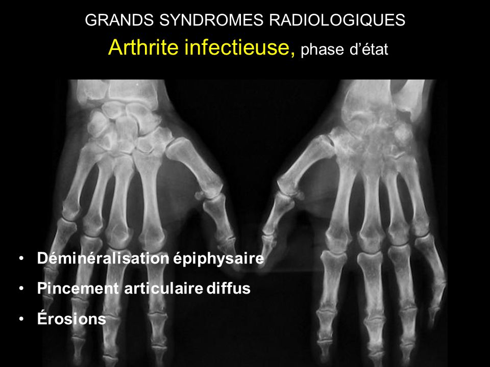 GRANDS SYNDROMES RADIOLOGIQUES Arthrite infectieuse, phase d'état