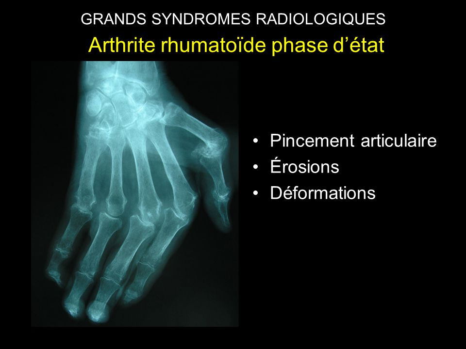 GRANDS SYNDROMES RADIOLOGIQUES Arthrite rhumatoïde débutante