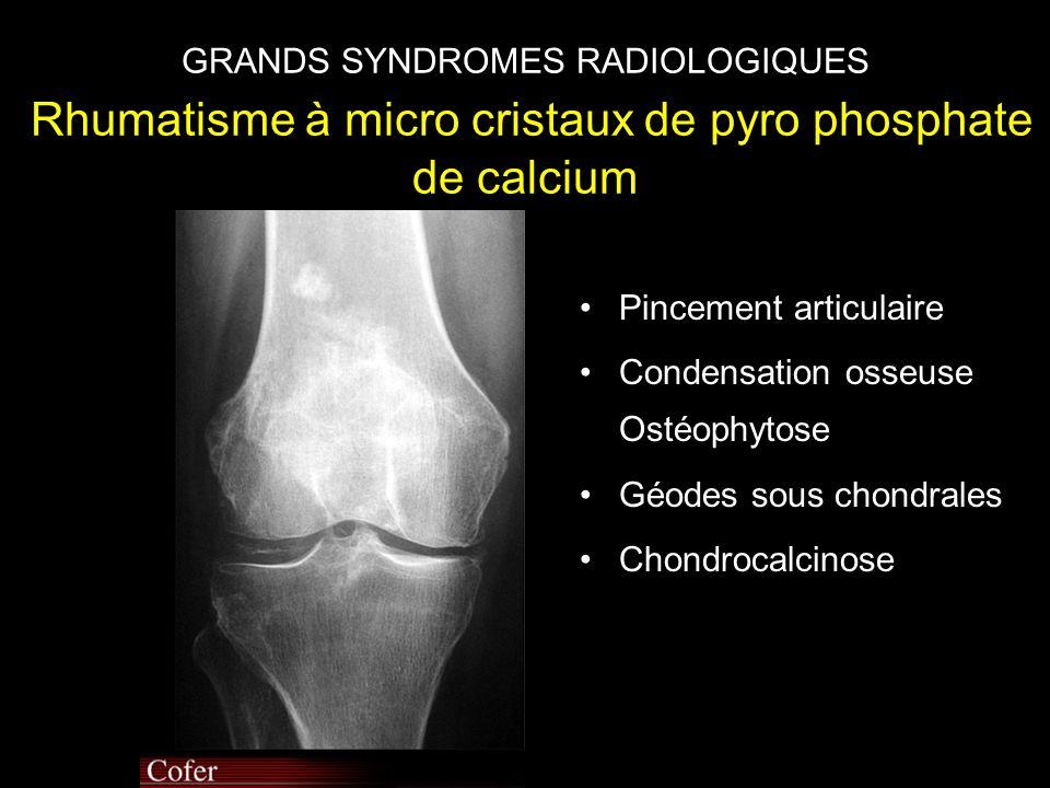 GRANDS SYNDROMES RADIOLOGIQUES Rhumatisme à micro cristaux de pyro phosphate de calcium