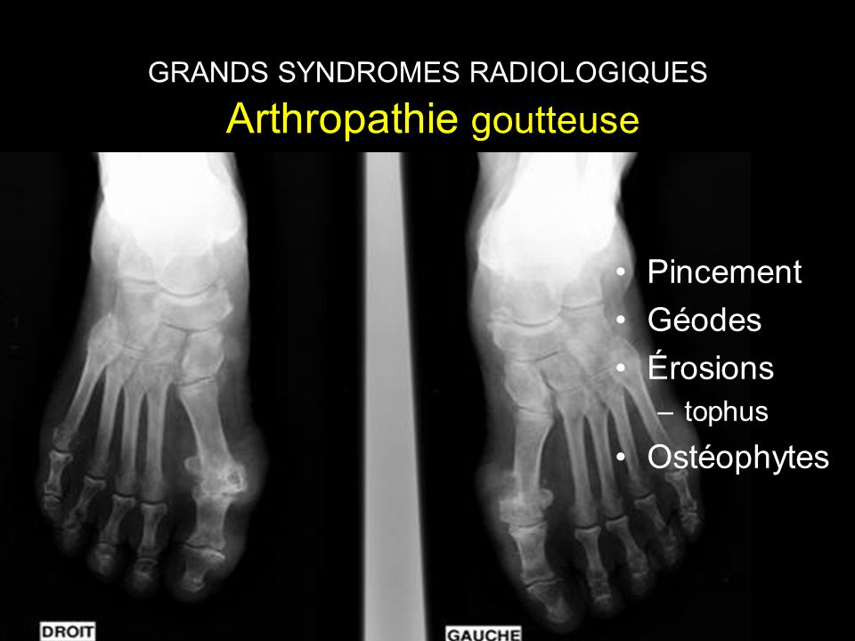 GRANDS SYNDROMES RADIOLOGIQUES Arthropathie goutteuse