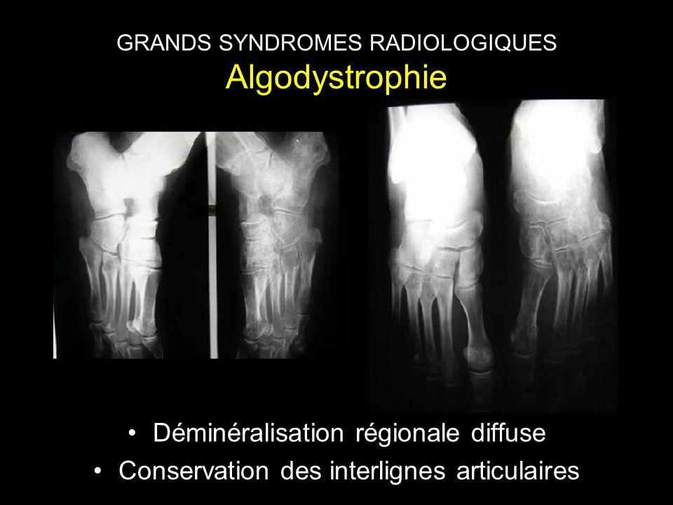 GRANDS SYNDROMES RADIOLOGIQUES Algodystrophie