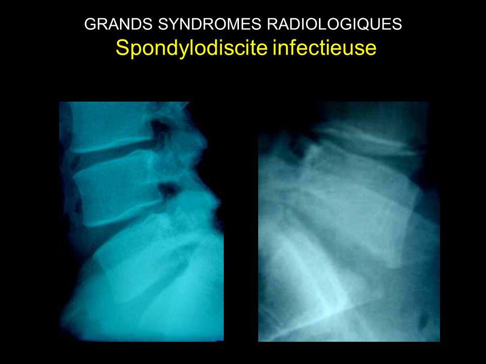 GRANDS SYNDROMES RADIOLOGIQUES Spondylodiscite infectieuse