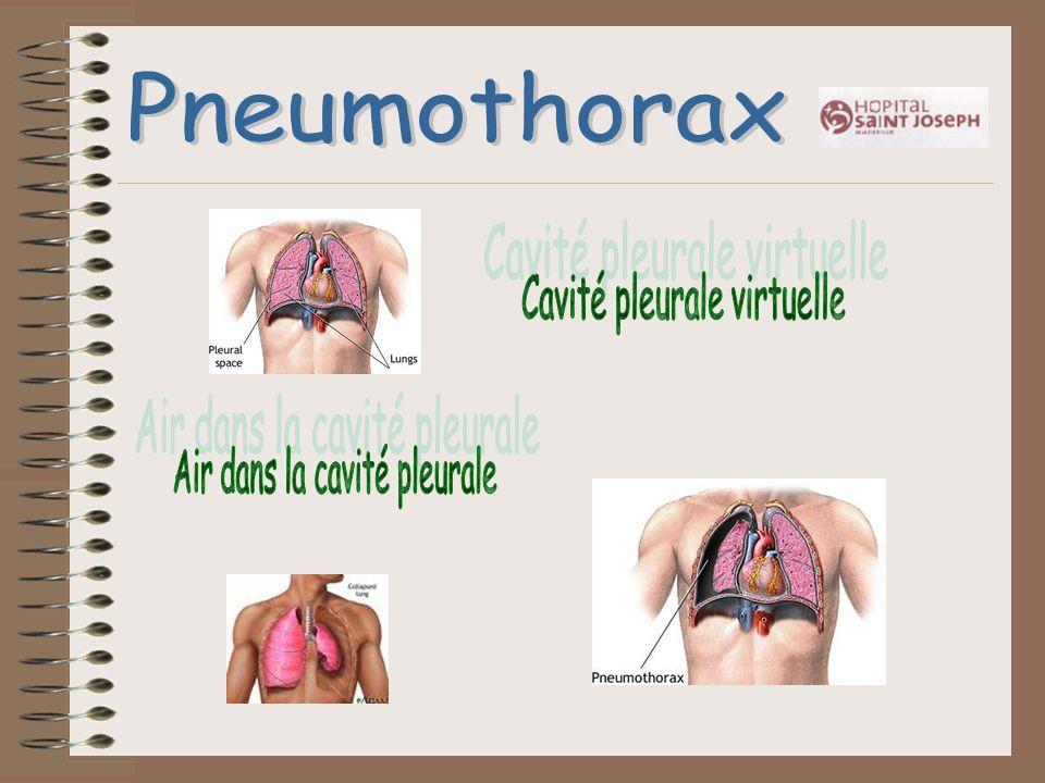 Pneumothorax Cavité pleurale virtuelle Air dans la cavité pleurale