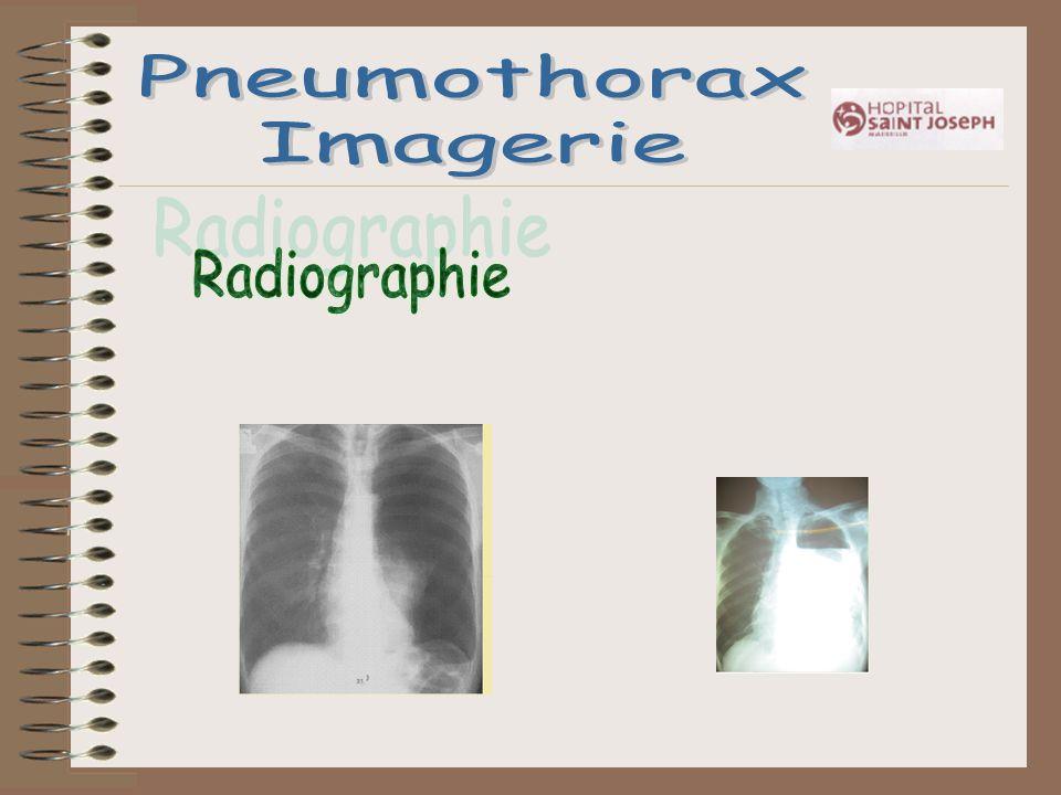 Pneumothorax Imagerie Radiographie