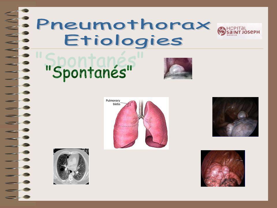 Pneumothorax Etiologies Spontanés