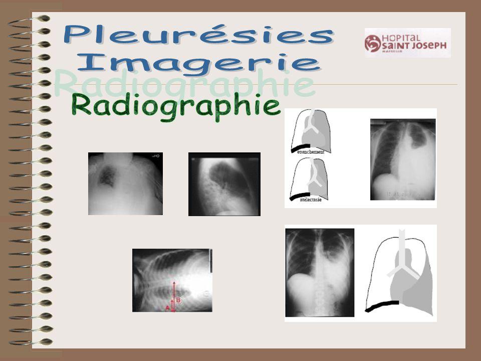 Pleurésies Imagerie Radiographie