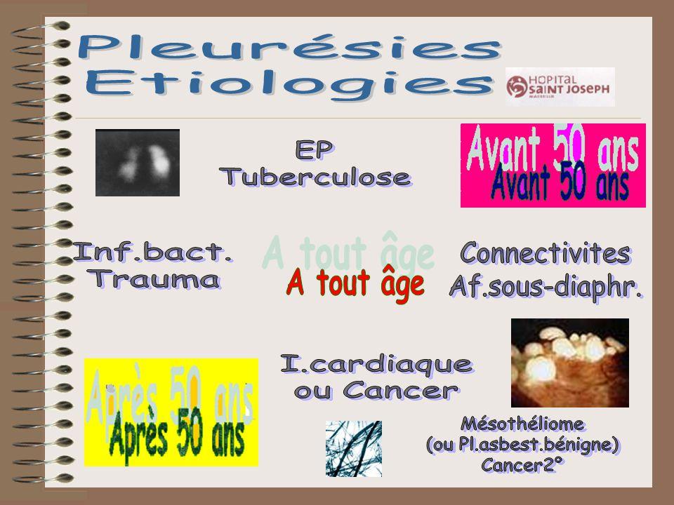 Pleurésies Etiologies EP Tuberculose Inf.bact. Trauma Connectivites